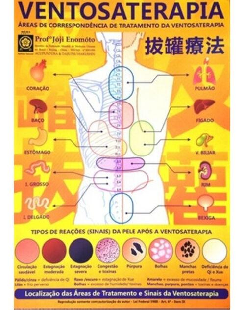 Mapa Ventosaterapia - A4 | Professor Jóji Enomóto